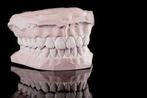 denturesmod